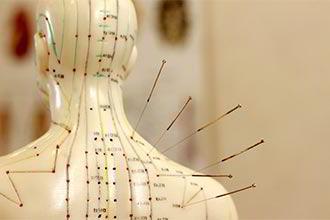 Кто такой иглорефлексотерапевт: что за профессия: что лечит?